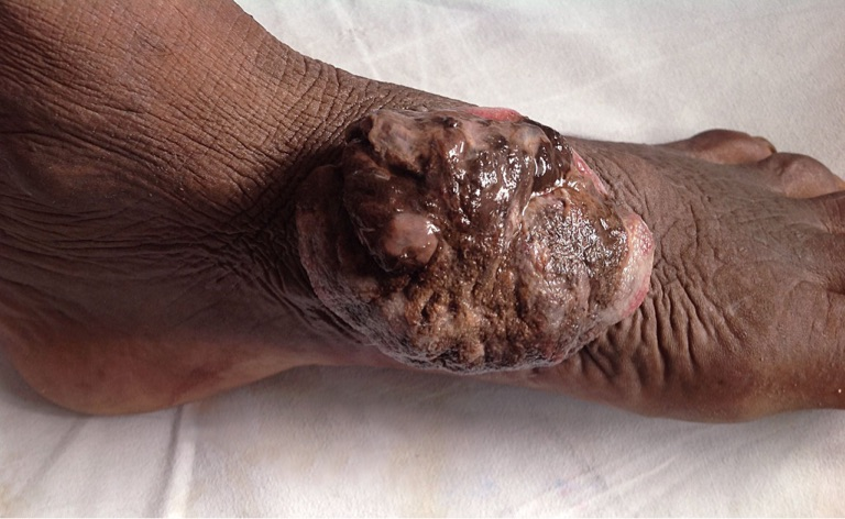 Year old Swelling on the dorsum of foot