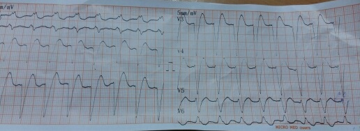 Elderly with chest pain