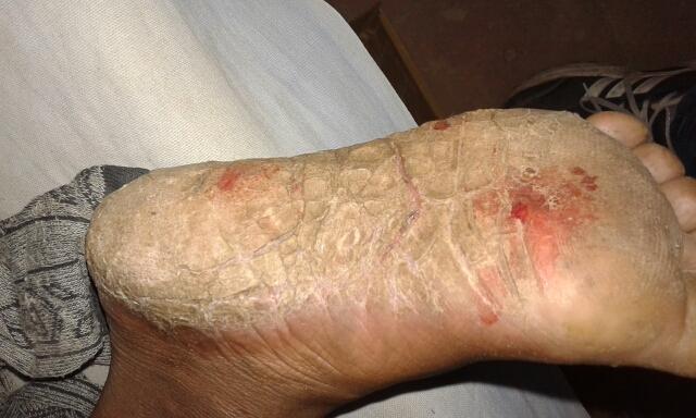 Spot Diagnosis :Skin