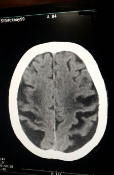 Elderly male with h/o fall. Your comments?