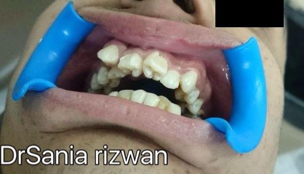 Management of irregular teeth