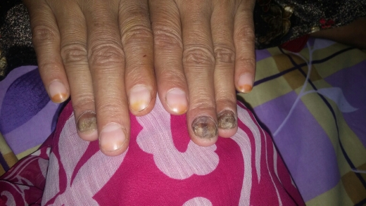 Anaemic pt. with clubbing nails
