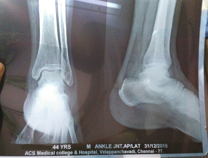 Pain and swelling of Ankle Joint
