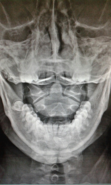 Pt. with pain in mandible