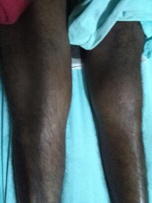 Swollen knee and thigh