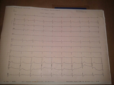 ECG of pt. with giddiness