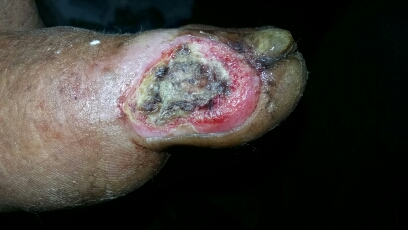 Skin lesion in a elderly male