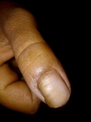 Pt. with c/o pain in finger