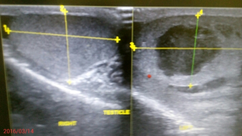 What is the cause of this scrotal swelling?