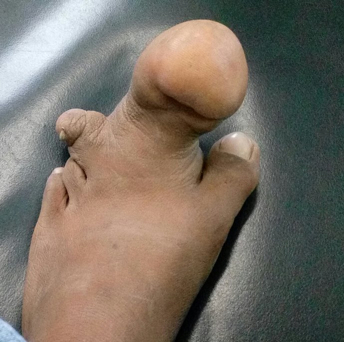 Top Case: Abnormal Growth of 3rd Toe