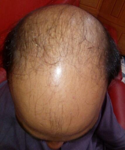 How can alopecia be treated?