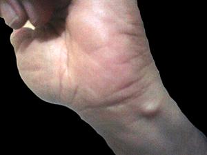 Asymptomatic Swelling of skin. Dx?
