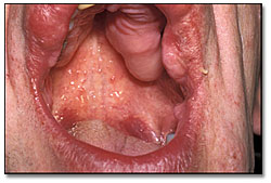 What could cause these oral swellings?