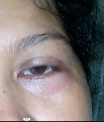 What is causing swelling of eye?