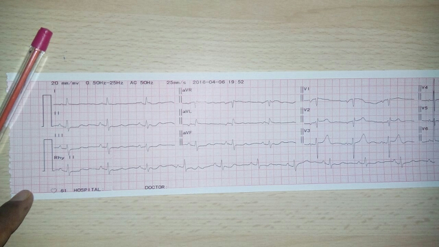 ECG of a patient with chest pain. Your Diagnosis?