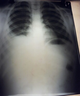 Young patient with chest pain. CXR findings?