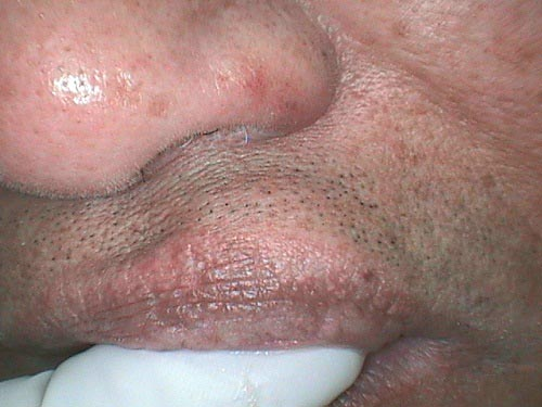 Firm pink module on upper lip. Kindly comment.