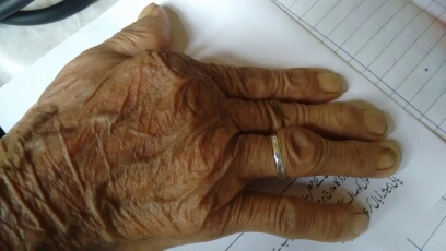 Can you name this deformity in RA patient?