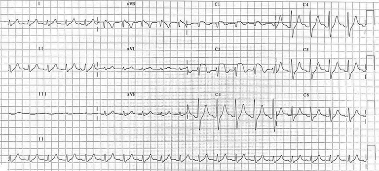 Post-doctoral diabetic student with chest pain. Dx?