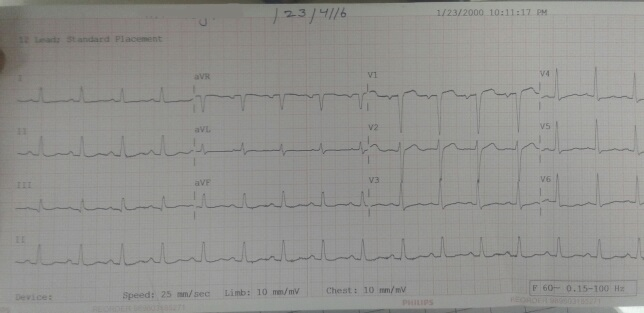 Pt. with Chest pain and breathlessness. Report ECG?