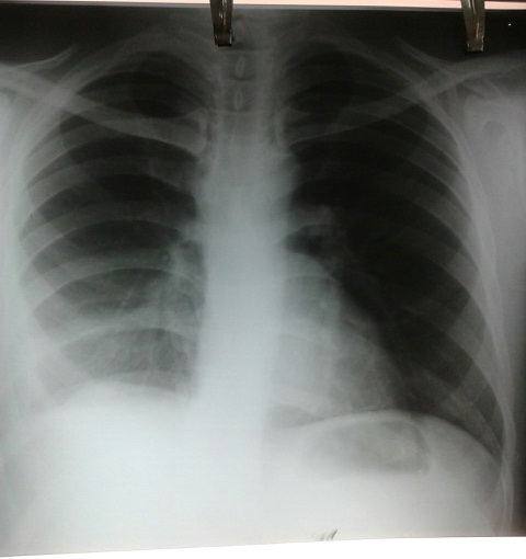 Pt. with low grade fever. CXR findings?