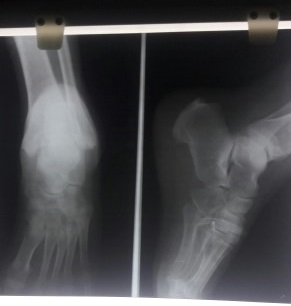 Pt. with painful back and foot after fall. X-ray findings?
