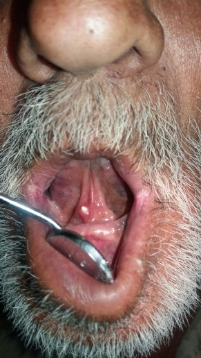 How to manage this oral condition?