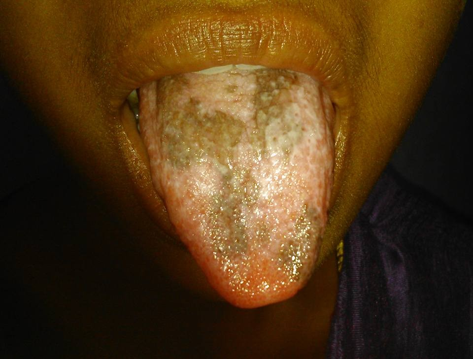Lesions on tongue of young boy. Comments?