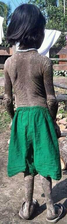 Identify this rare condition?