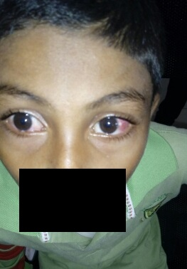Pt. with redness and painful eye. Rx and Diagnosis?