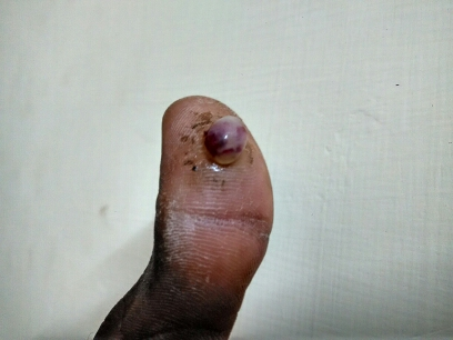 Swelling after needle prick to thumb. Your comments?