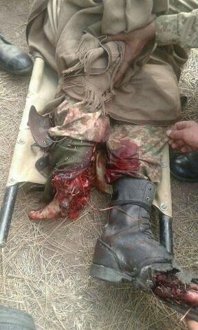 Victim of landmine. Suggest management?