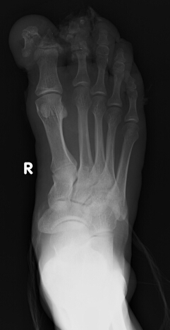 Young pt. with RTA. Radiological findings?