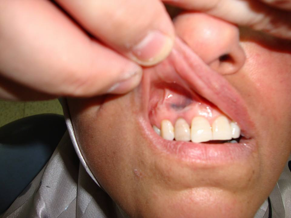 Non elivated flat lesion in mouth. Your diagnosis?