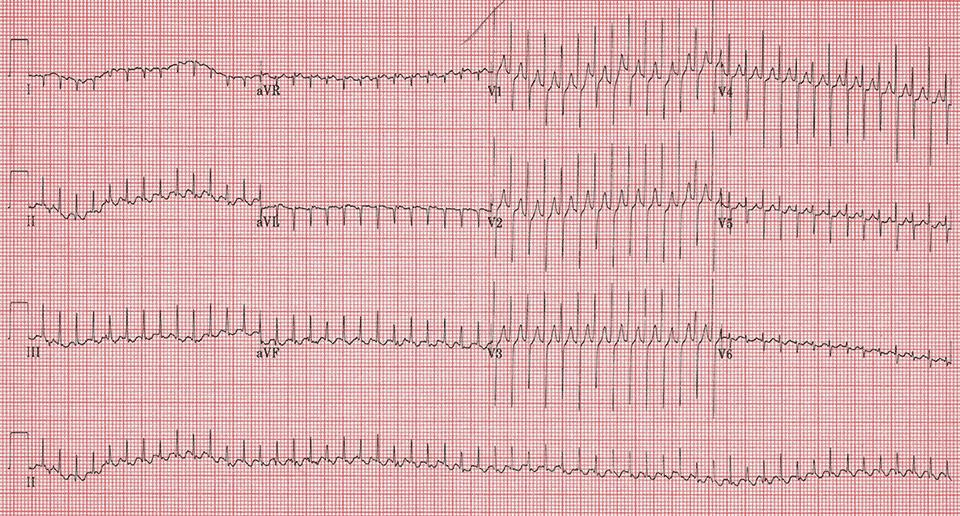 Narrow complex tachycardia in a 6 week old. Comments?