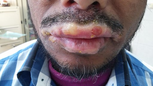 Oedematous upper and lower lips, and associated bullous lesions. Comments?