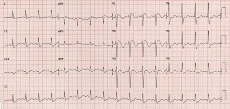 Pt. with syncope and dizziness. ECG readings?