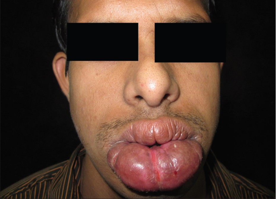 Identify this syndrome?