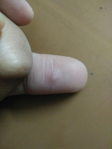 Young female with painful lesion on thumb. Kindly diagnose?