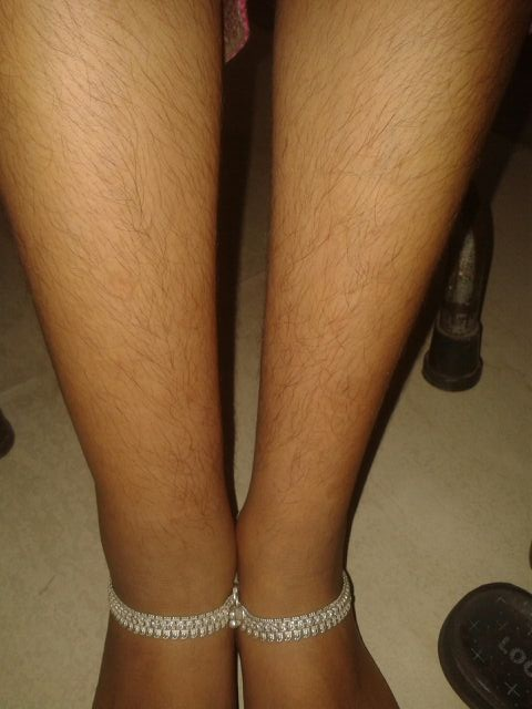 Swelling in right lower limb. Can you identify the reason?