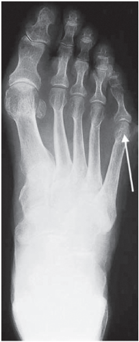 Worsening painful joints in female pt. Can you solve this?