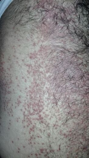 Young male with allergy all over body. Kindly diagnose?
