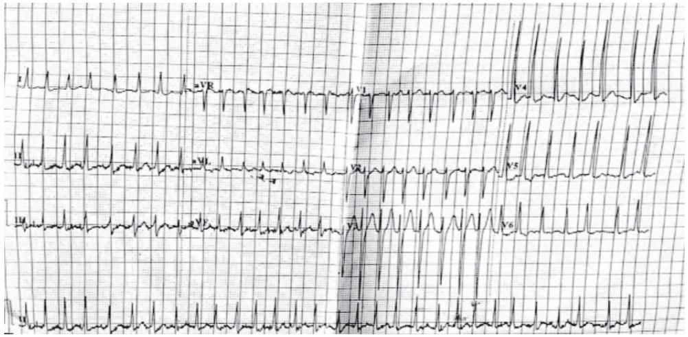 Elderly male with palpitations. Comments?