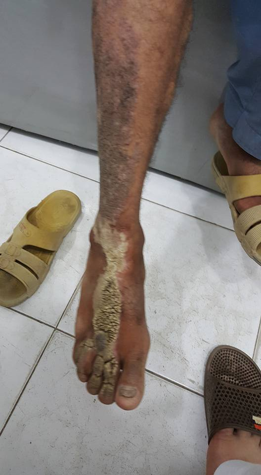 Itchy lesions on foot. Your diagnosis?