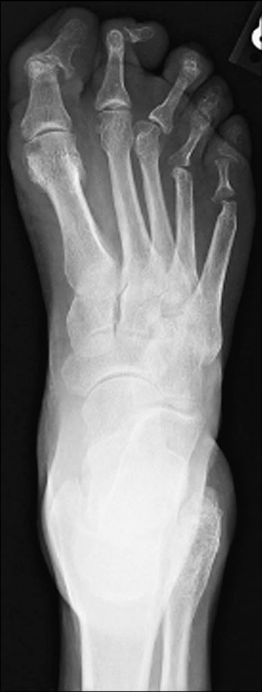 Findings in the X-ray?