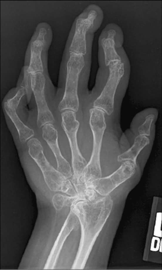 Painful joints in hand. Diagnosis?