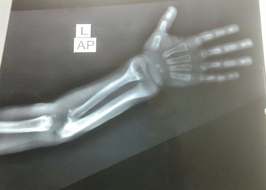 Young pt. with painful arm. Diagnose this X-ray?