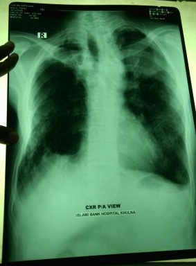 H/o smoking since 20 years. CXR findings?