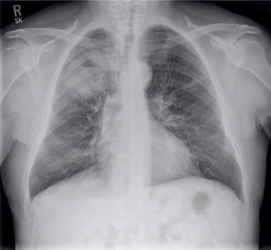 Cough and SOB in young male. Your findings?
