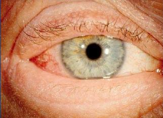 Bilateral itchy red eyes. Diagnosis?